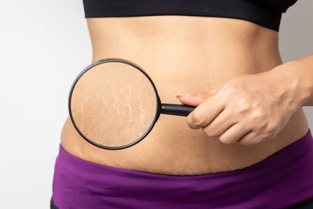 What is cellulite and how to get rid of it