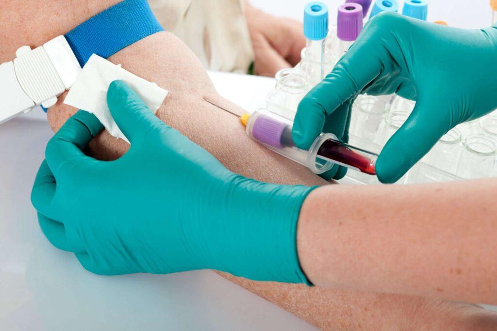 Abbott Antibody Blood test