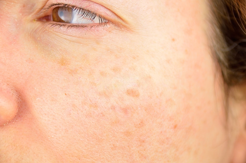 treatments for age spots