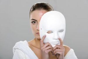 different ways of removing acne scars